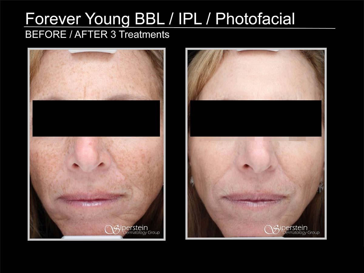 bbl/ipl/photofacial
