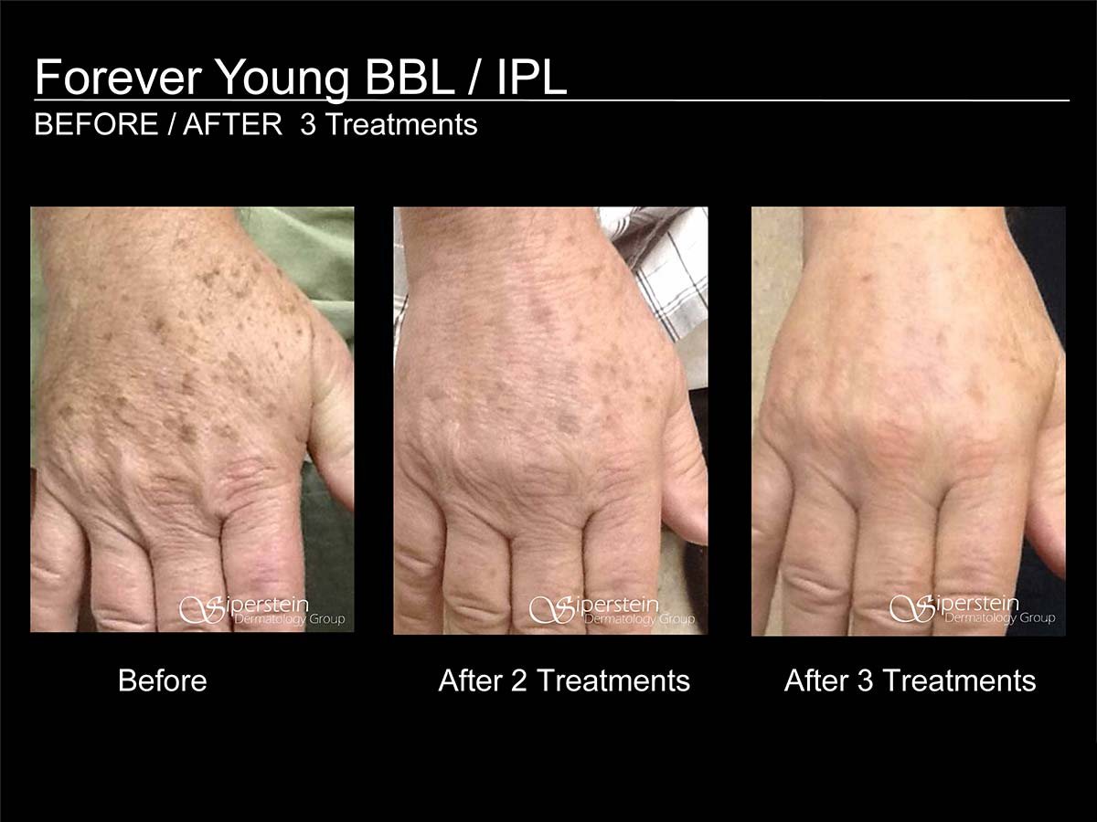 forever young bbl / ipl treatment