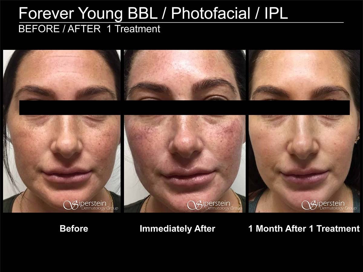Photofacial after 1 treatment