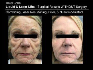 Liquid & Laser Lifts