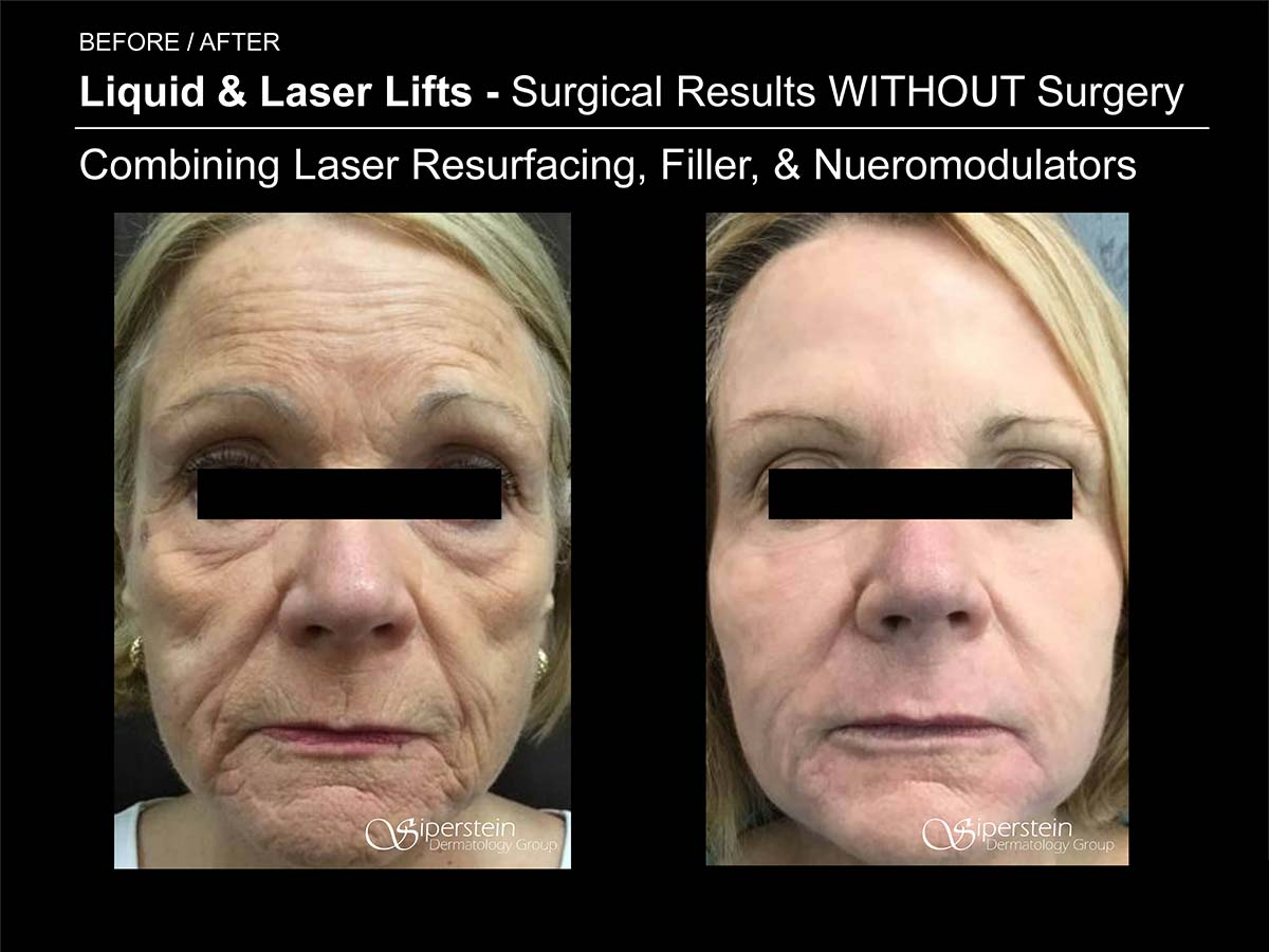 laser resurfacing, filler and neuromodulator results