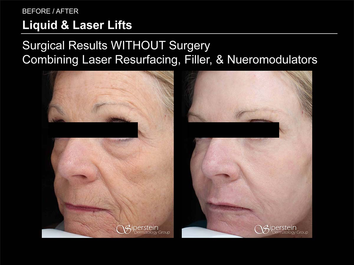 liquid and laser lifts