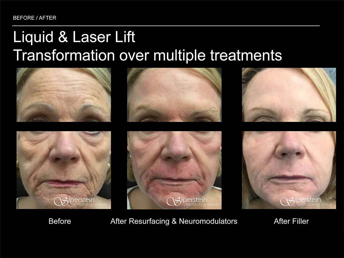 liquid and laser lift multiple treatments