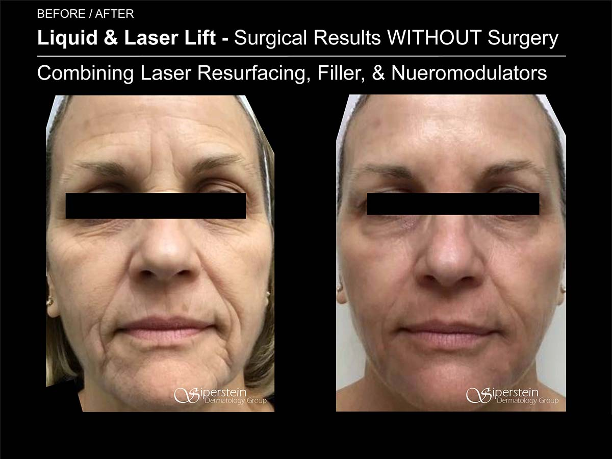 liquid and laser lift results