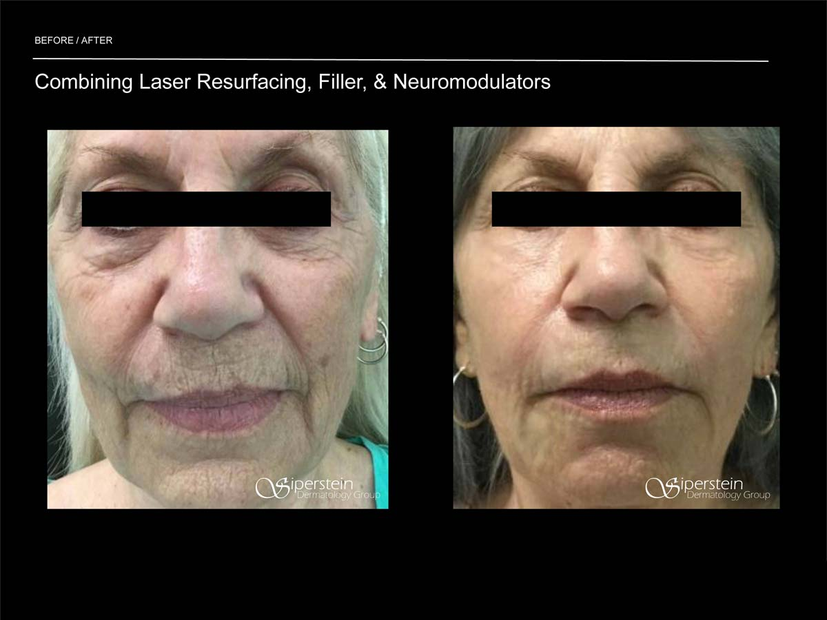 ultimate laser resurfacing, filler and neuromodulators