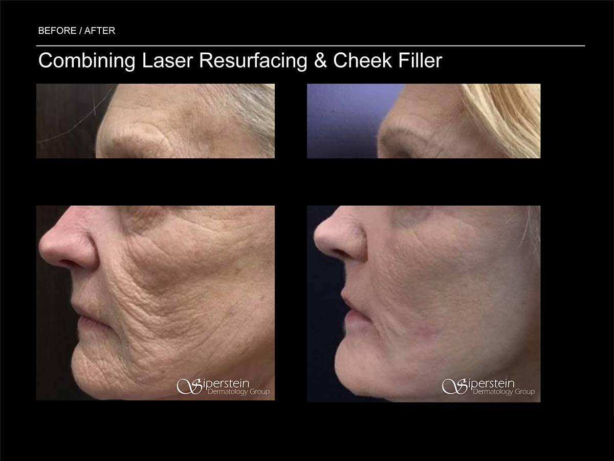 laser resurfacing and cheek filler