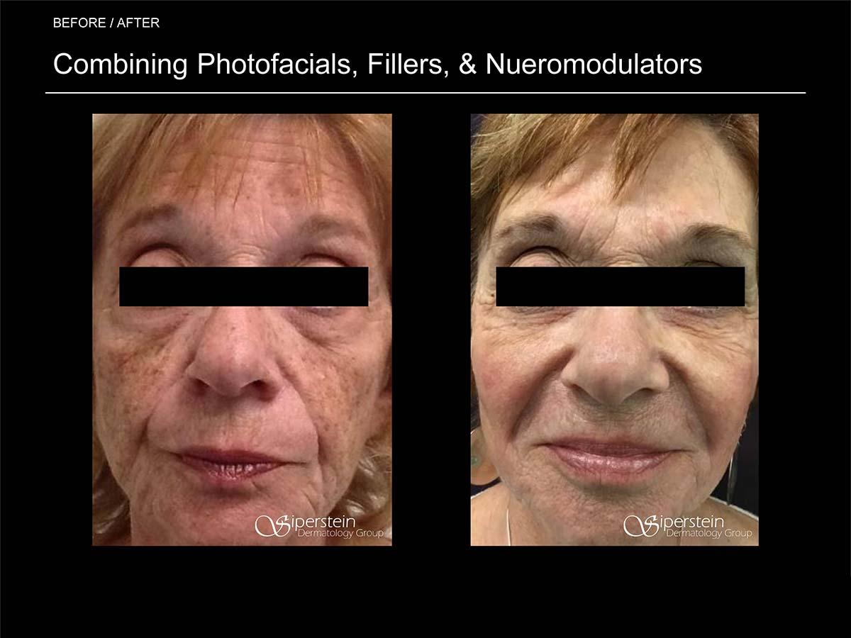 photofacials, fillers and neuromodulators