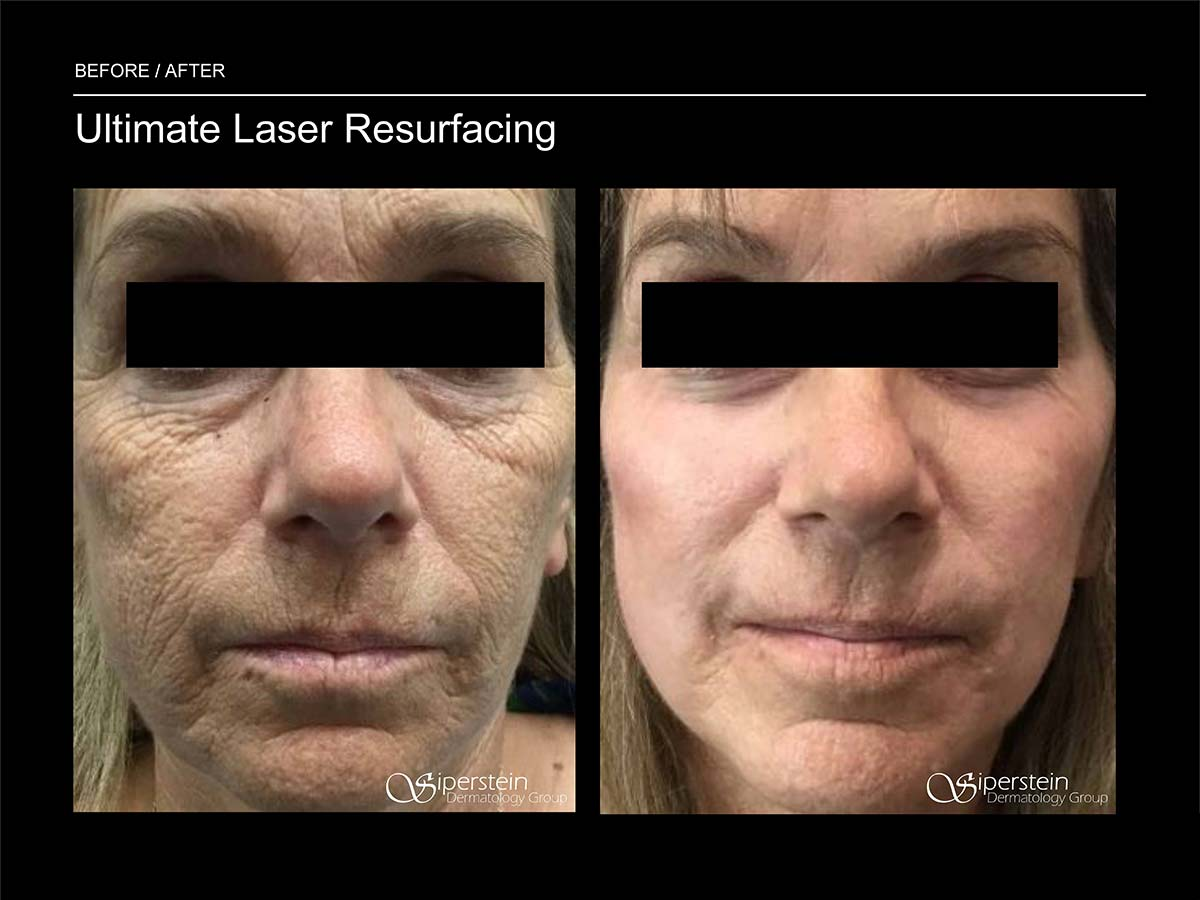 ultimate laser resurfacing procedure