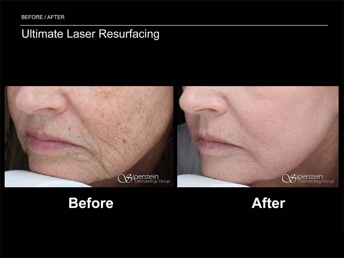 ultimate laser resurfacing procedure side view