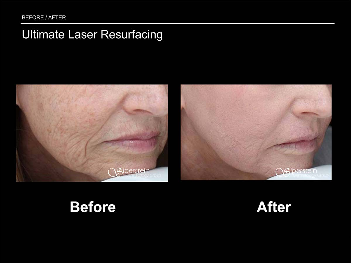 ultimate laser resurfacing procedure before and after photos