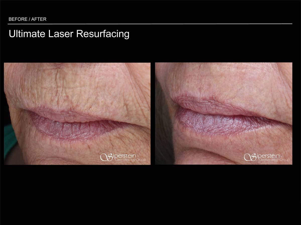 ultimate laser resurfacing procedure mouth