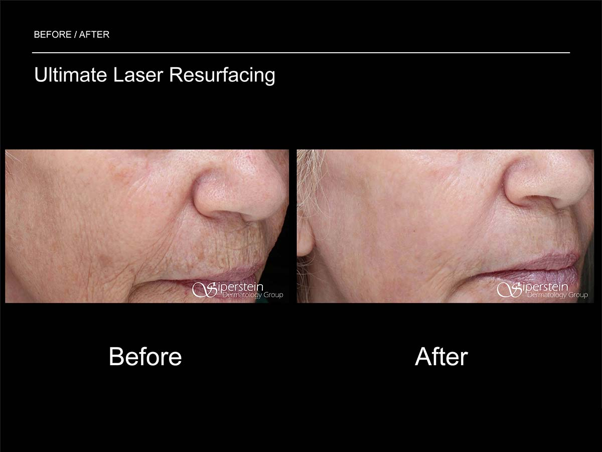 ultimate laser resurfacing treatment