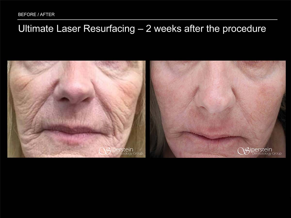 ultimate laser resurfacing 2 weeks later
