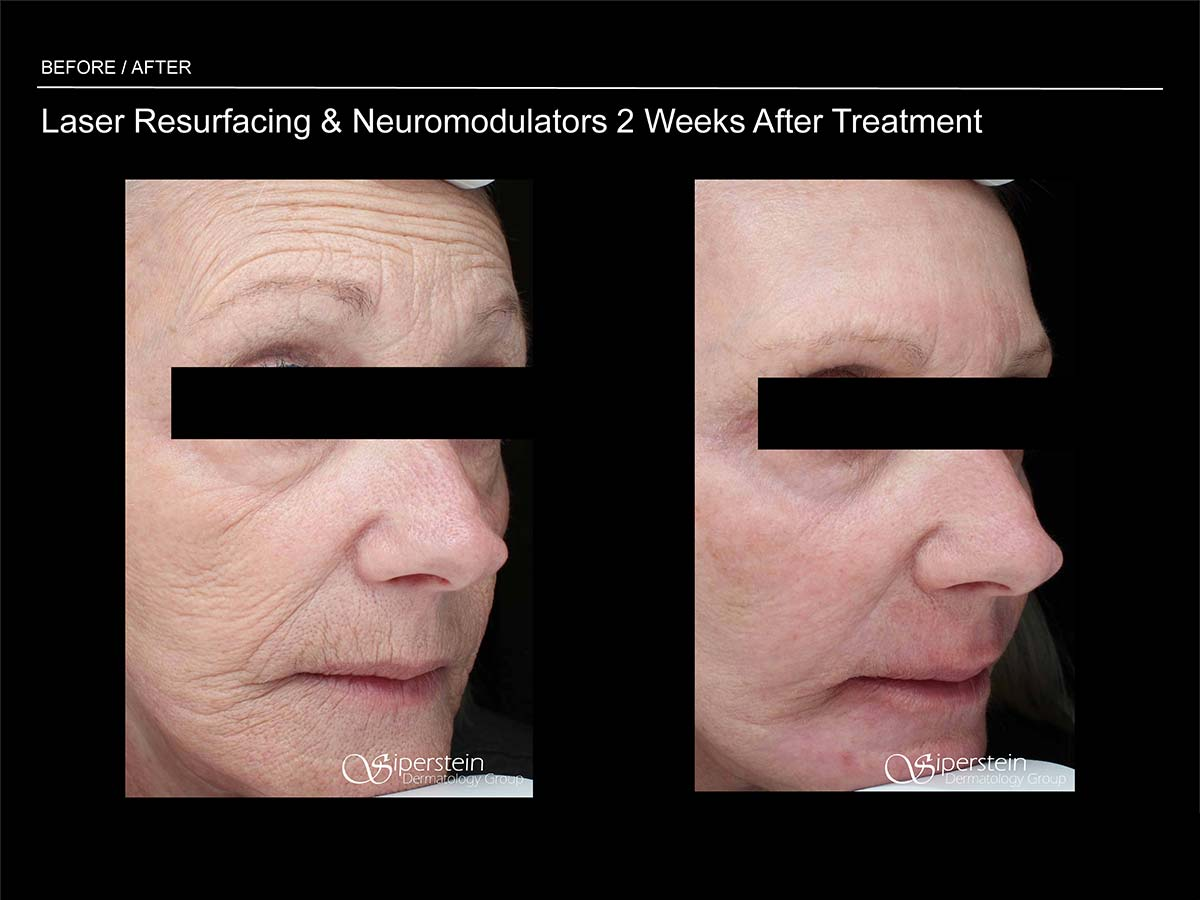 laser resurfacing and neuromodulators 2 weeks later
