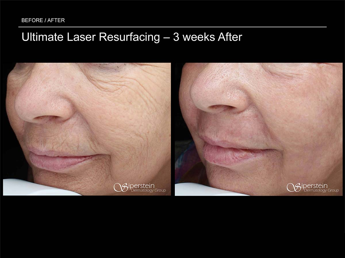 ultimate laser resurfacing 3 weeks later