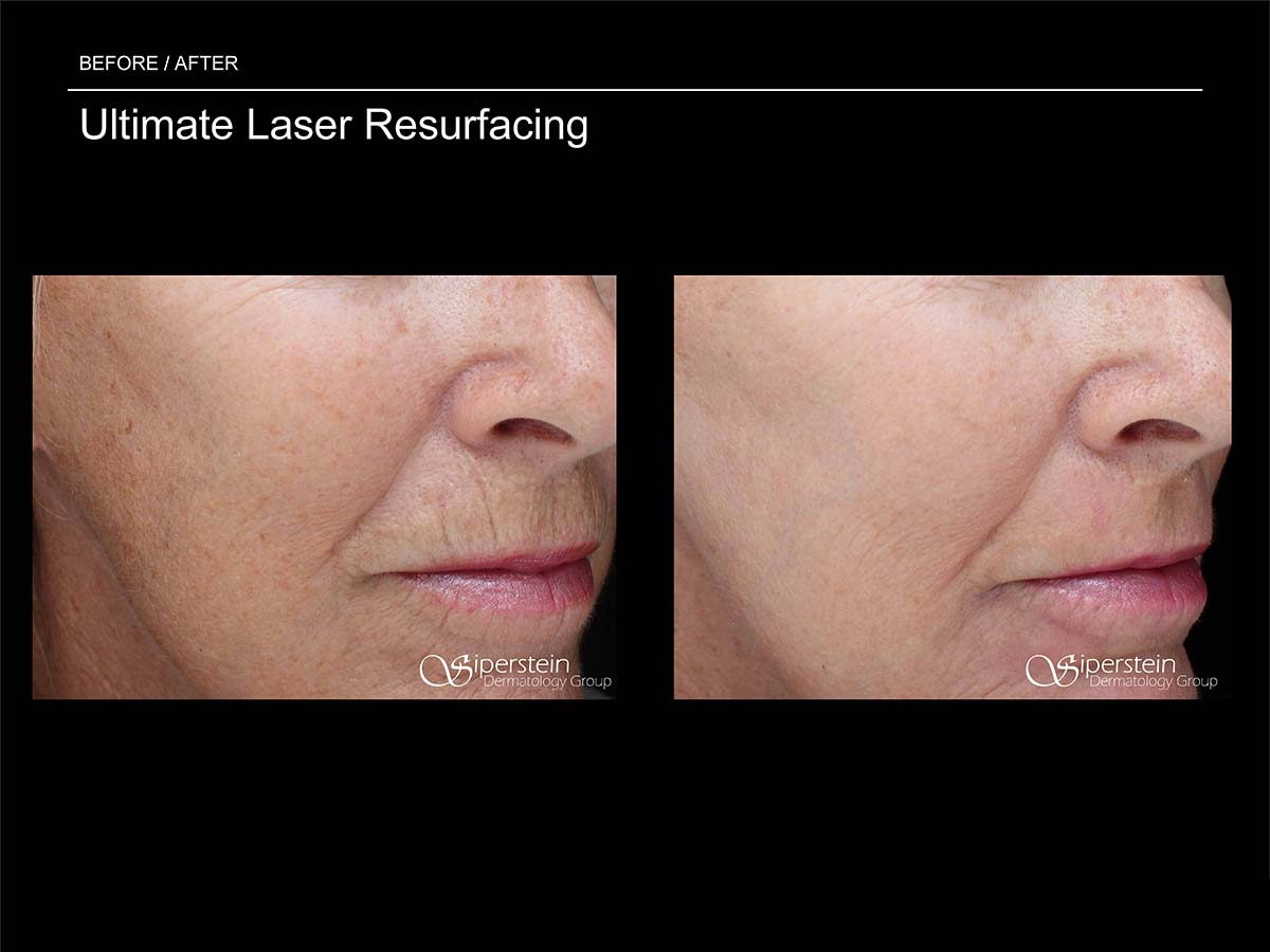 ultimate laser resurfacing