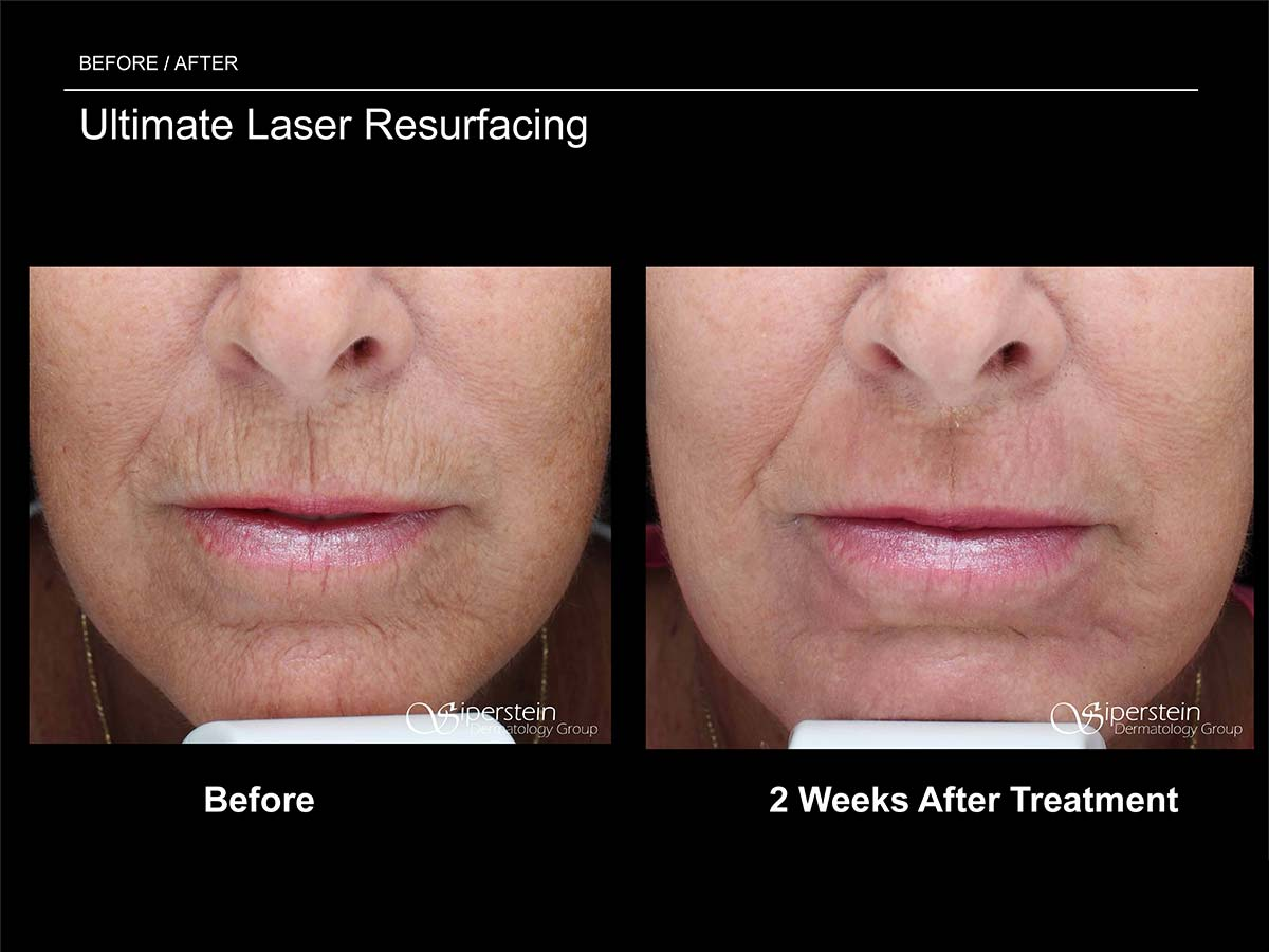 ultimate laser resurfacing front view