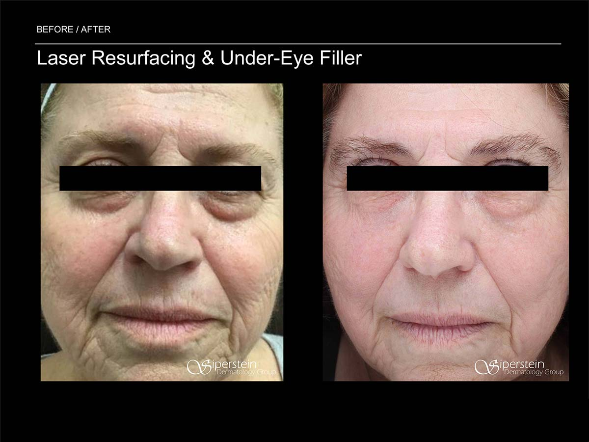 ultimate laser resurfacing and under eye filler