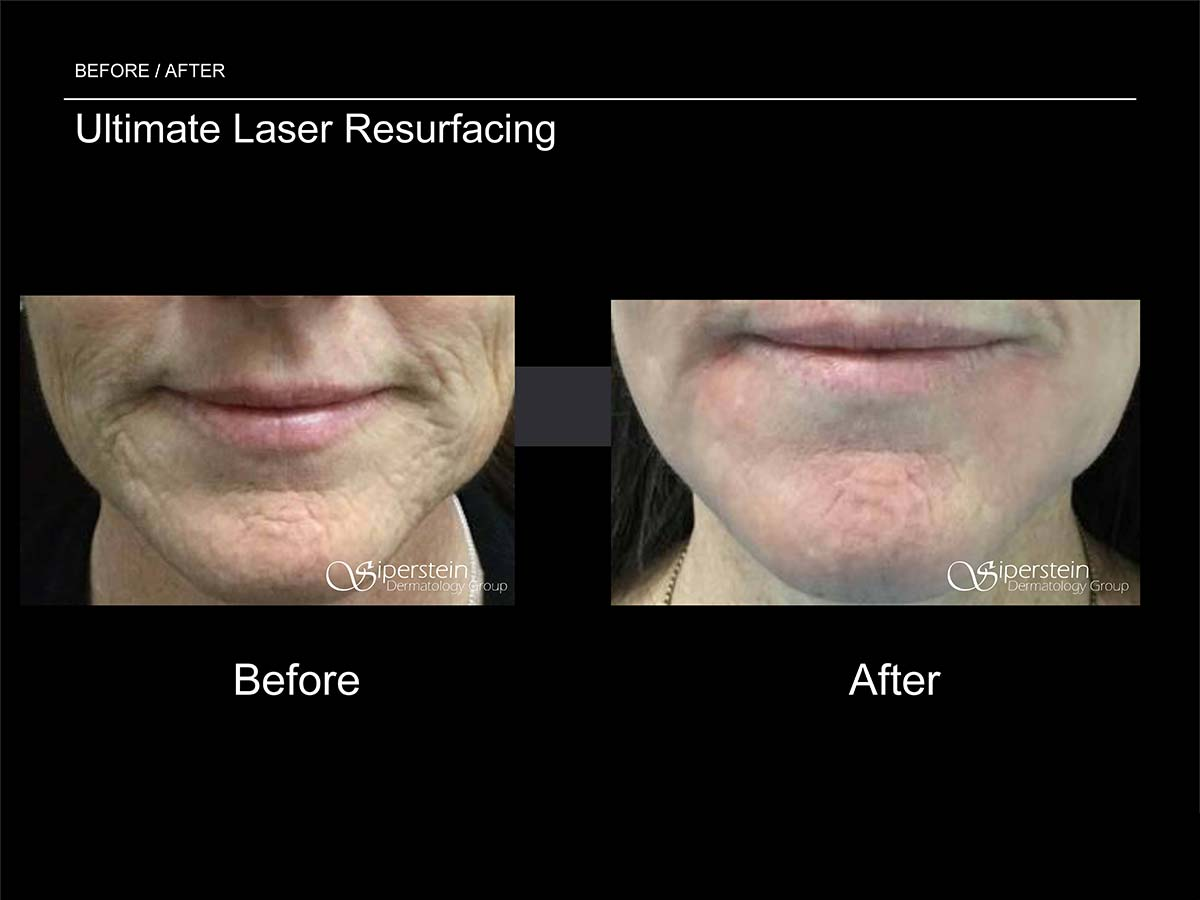 ultimate laser resurfacing procedure