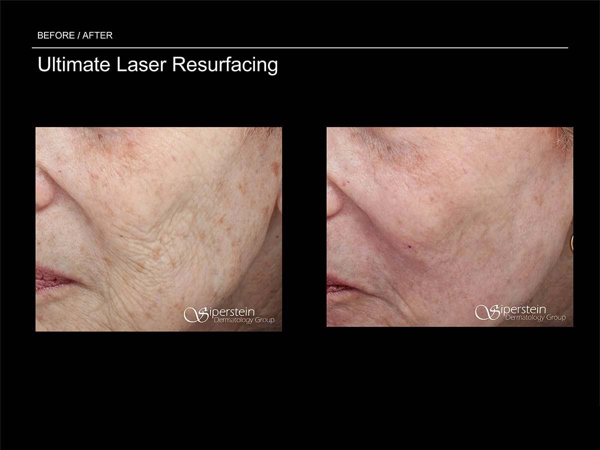 ultimate laser resurfacing treatment