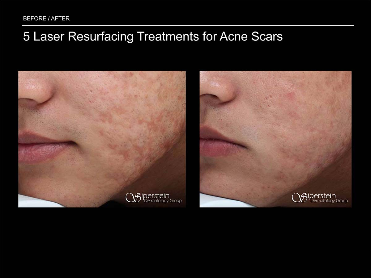 laser resurfacing treatments for acne scars