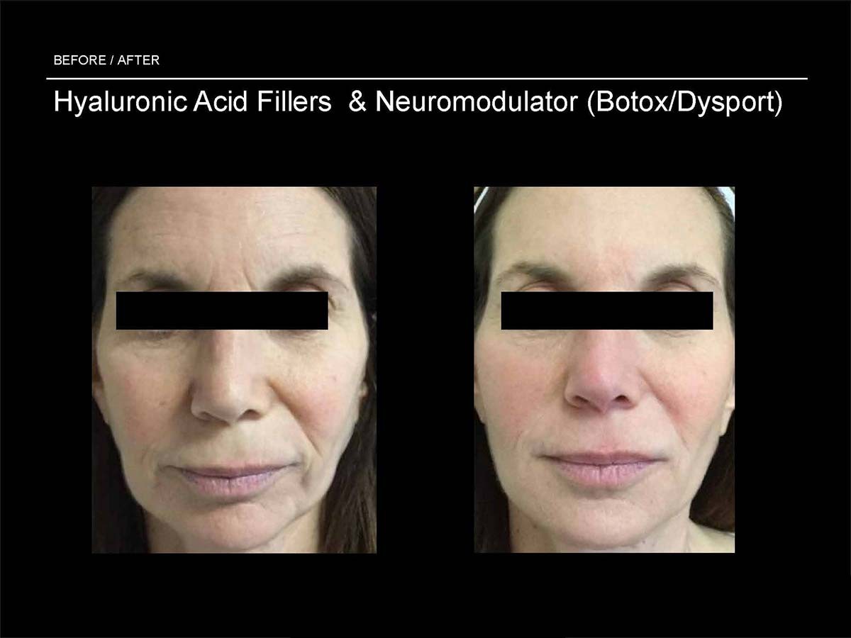 hyaluronic acid fillers and neuromodulator