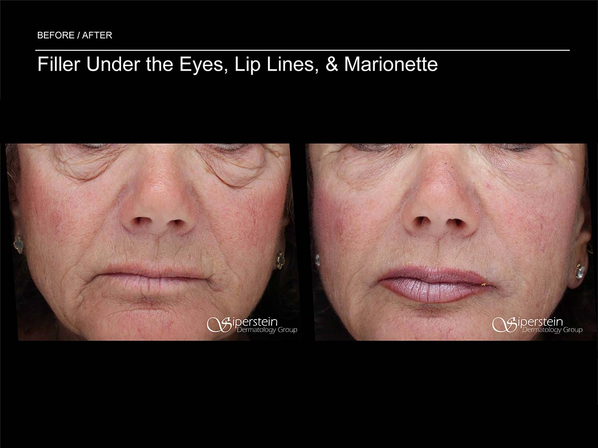 filler under the eyes lip lines and marionette