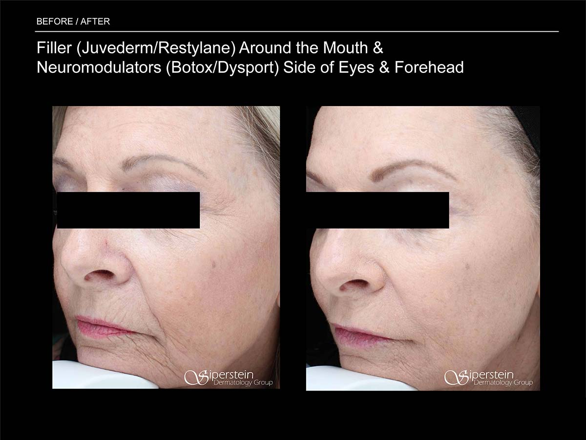 juvederm/restylane around mouth and botox/dysport side of eyes/forehead