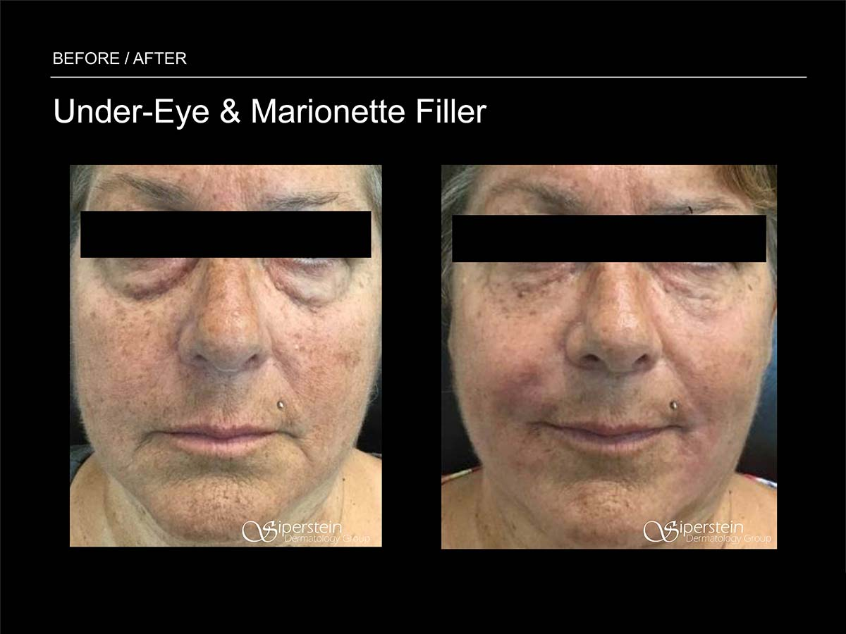 under eyes and marionette filler
