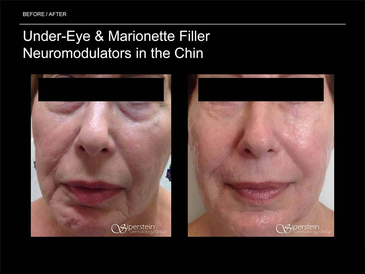 under eye and marionette filler neuromodulators in the chin