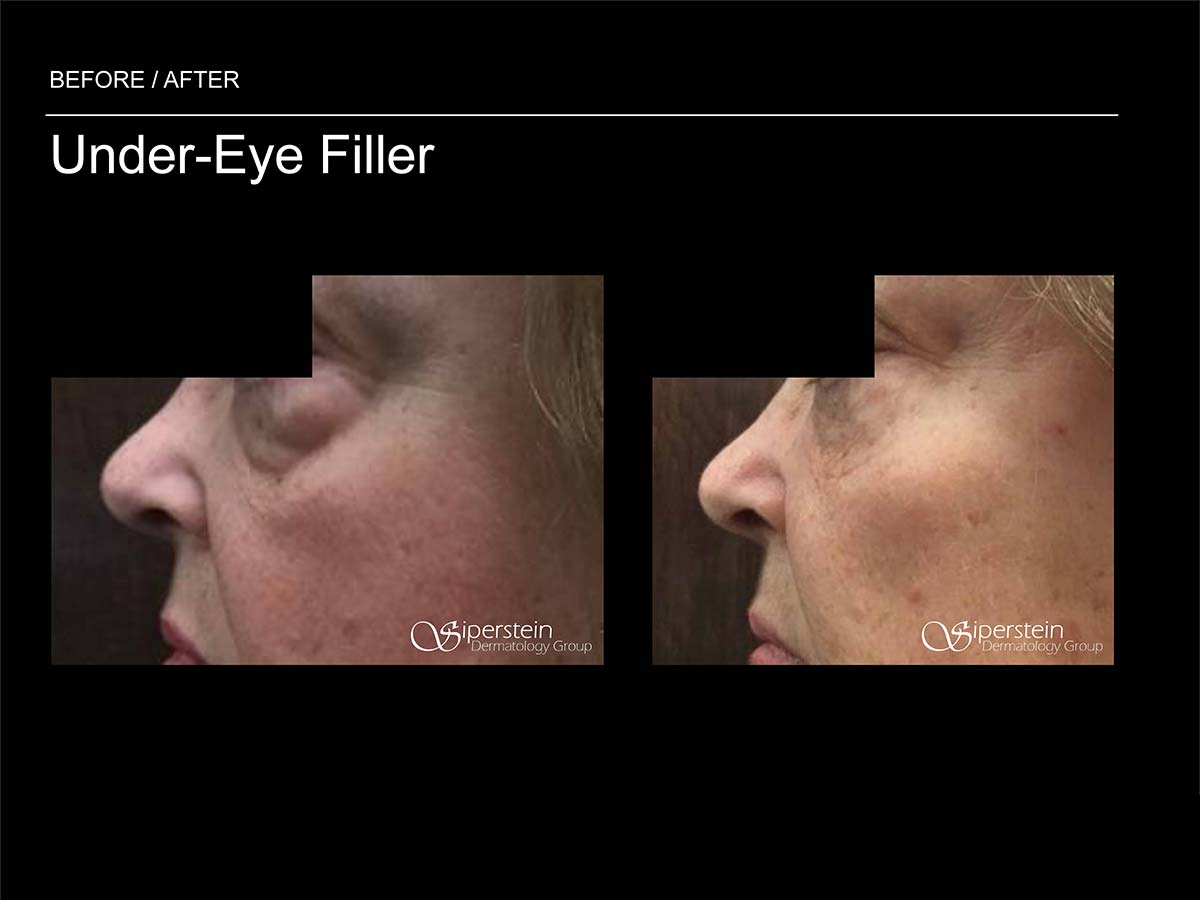 filler under the eye