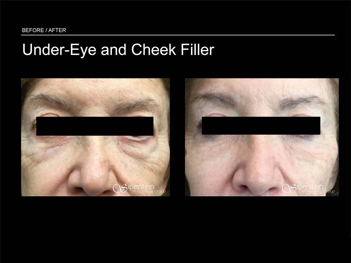 under eye and cheek filler