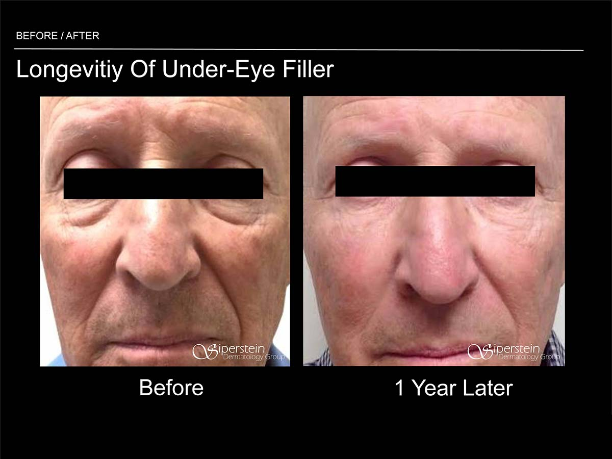 longevity of under eye filler