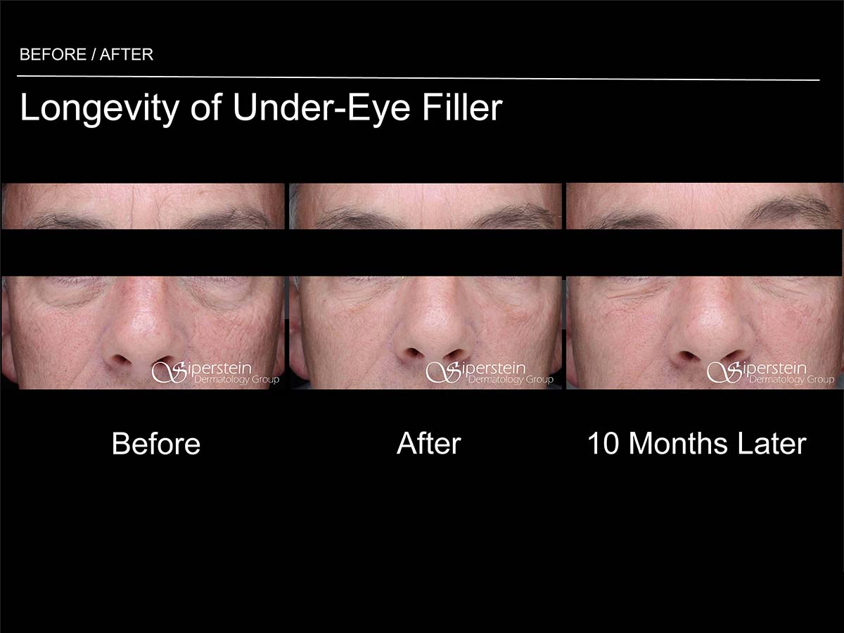 longevity of under eye filler 10 months later