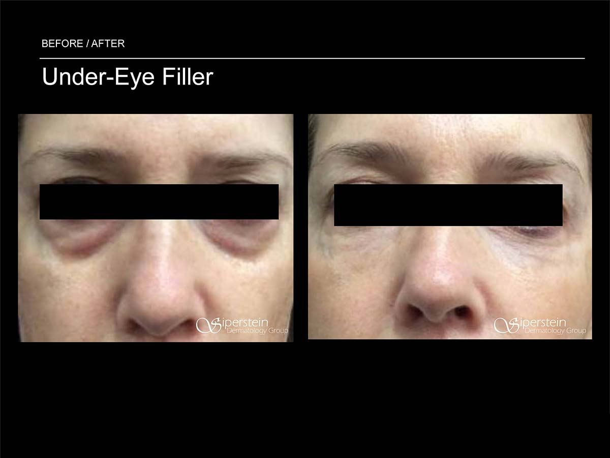 under eye filler procedure