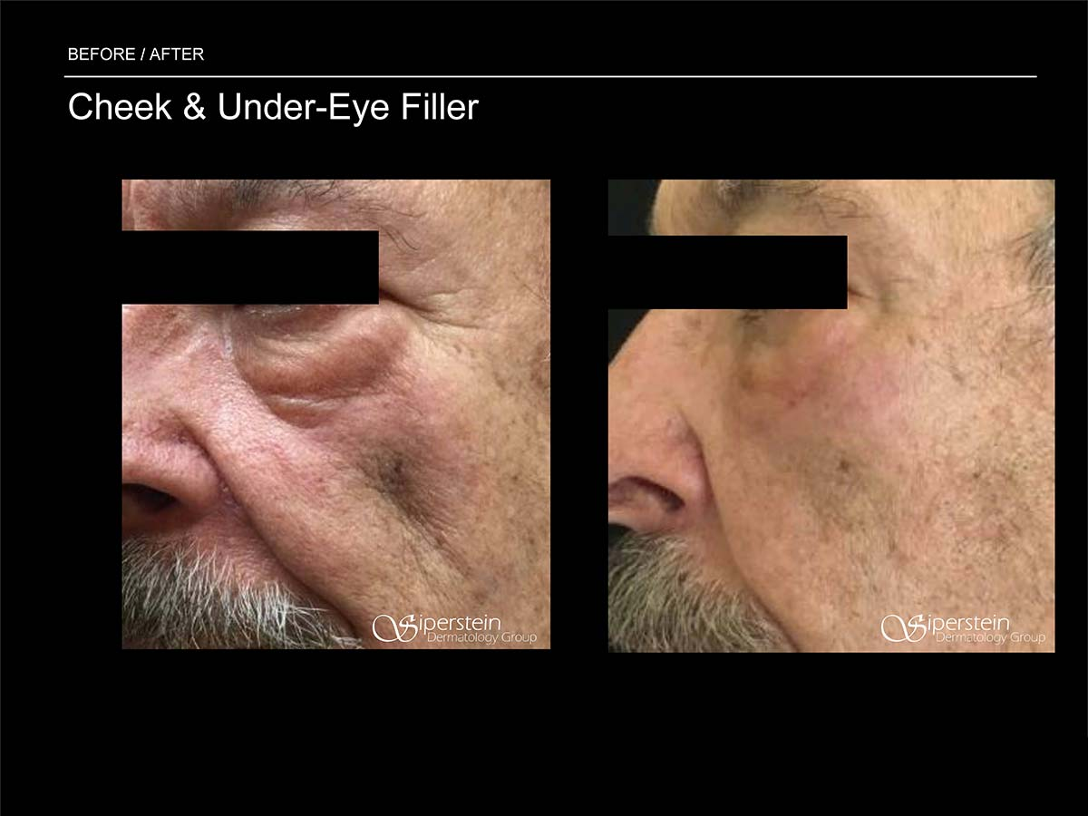 close up cheek and under eye filler