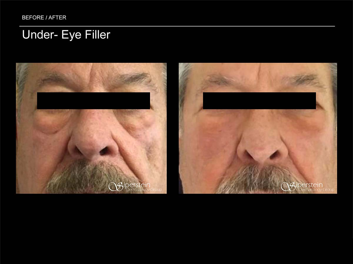 under eye filler front view
