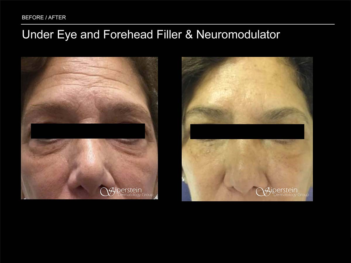 under eye and forehead filler