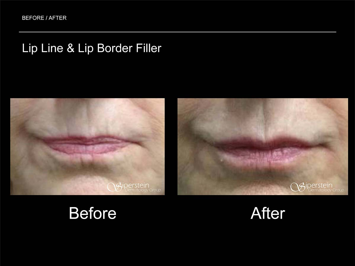 lip line and lip border filler