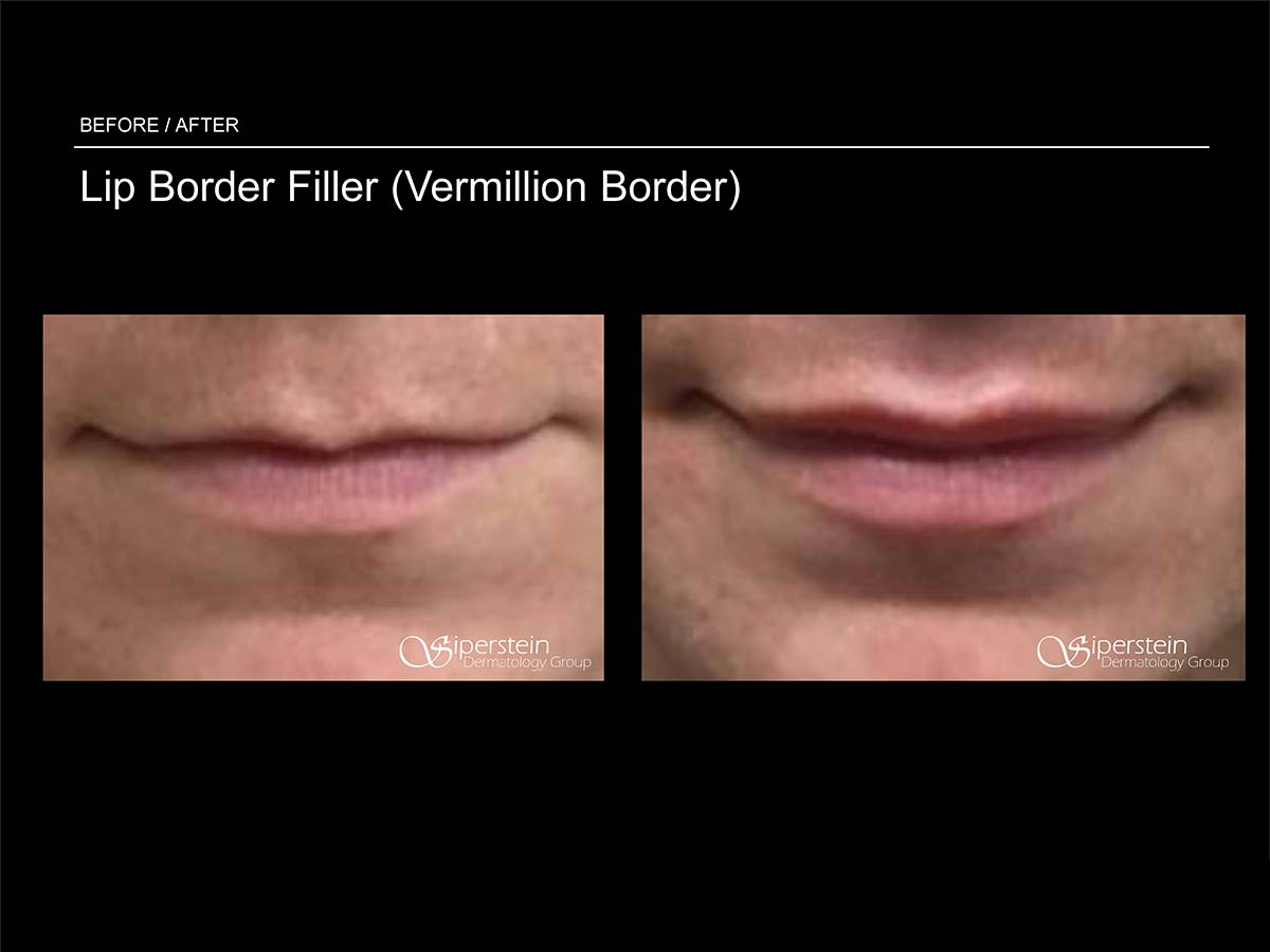 lip border filler