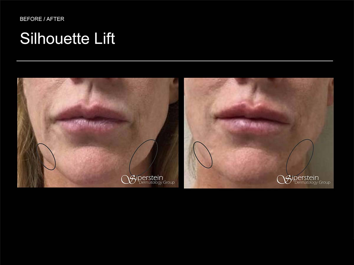silhouette lift on face