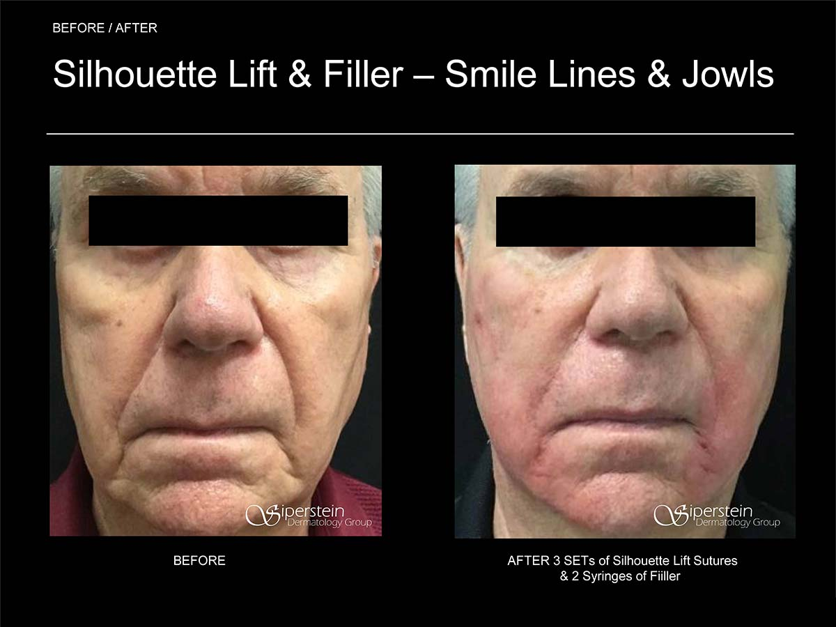silhouette lift and filler around smile and jowls