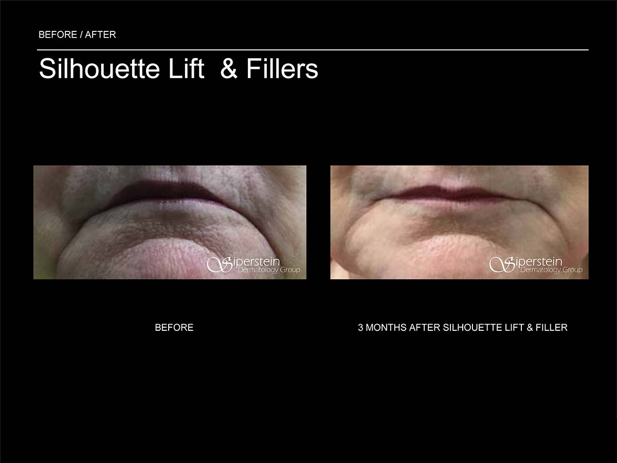 silhouette lift and fillers on mouth