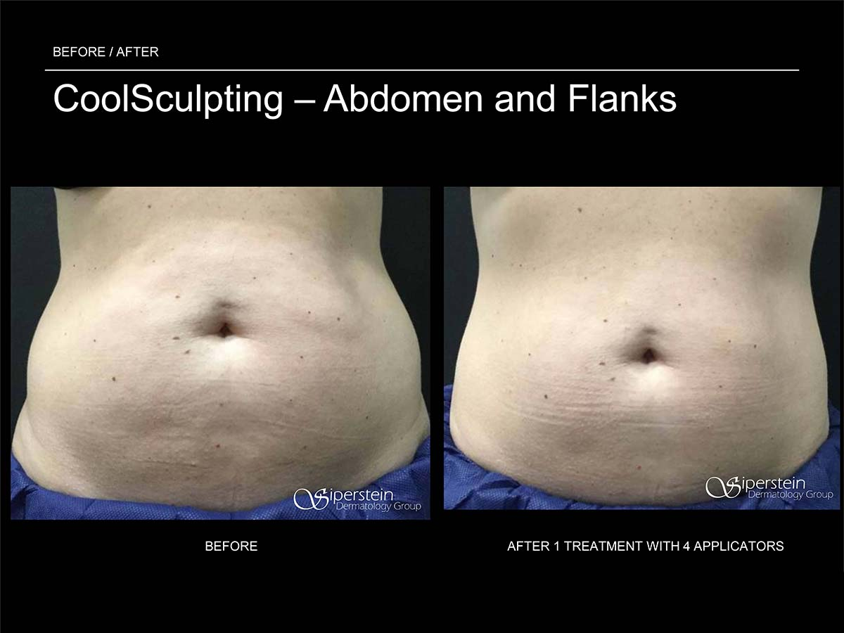 coolsculpting treatment abdomen and flanks