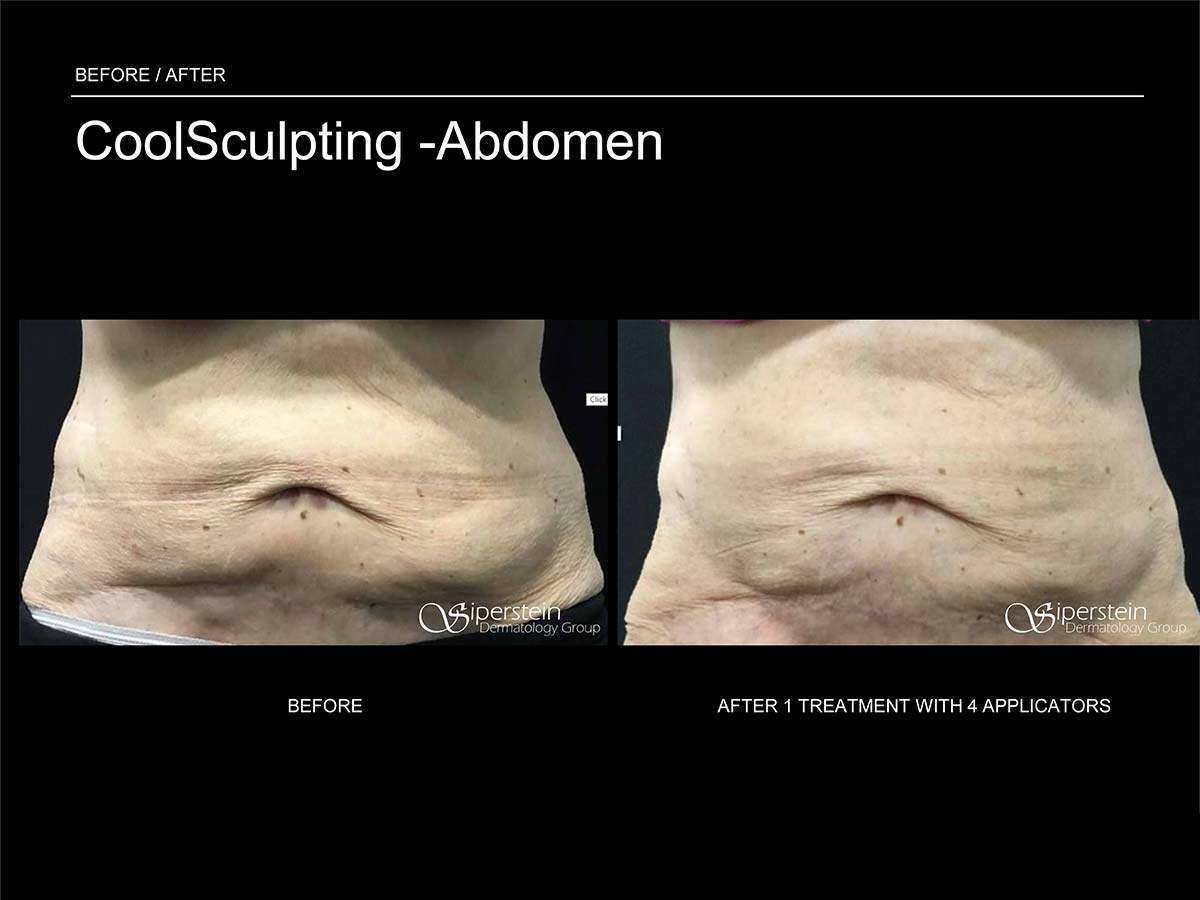 coolsculpting on abdomen after 1 treatment