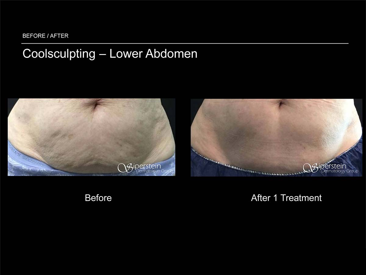 coolsculpting lower abdomen after 1 treatment