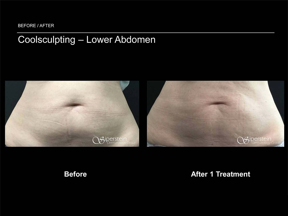 coolsculpting lower abdomen