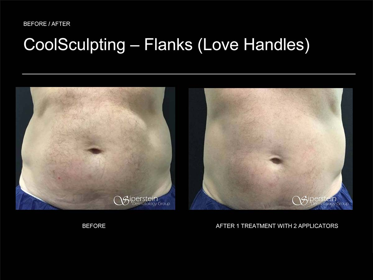 coolsculpting love handles after 1 treatment