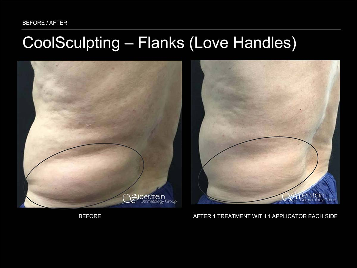 coolsculpting flanks (love handles) treatment