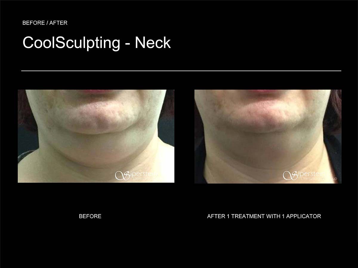 coolsculpting neck front view